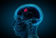 Photo of Be careful with these symptoms of brain tumors