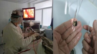 Photo of Doctors pulled out a 53-year-old coin stuck in a senior citizen's nose